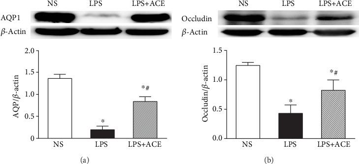 ACE mitigates the LPS-downregulated AQP1 and Occludin proteins in the lung tissues. AQP1 (a), Occludin (b), and β -actin proteins in the lung tissues of each animal were quantified by Western blot. Data are representative images or expressed as the mean ± SD of individual groups ( n = 5 per group) from three separate experiments. AQP1: aquaporin 1. ∗ P