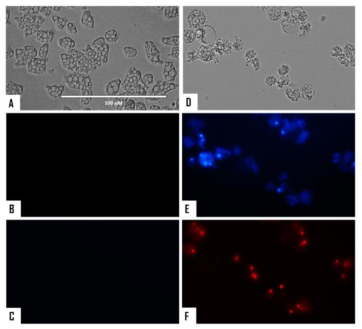 Naegleria fowleri trophozoites incubated with IC 90 of STS for 24 h ( D – F ). Negative control ( A – C ). Hoechst stain is different in control cells, where no fluorescence is observed ( B ), and in treated cells, where the nuclei are intense blue ( E ). Red fluorescence corresponds to the <t>propidium</t> iodide stain ( C , F ). Visible channel ( A , D ); Hoechst channel ( B , E ), and propidium iodide channel ( C , F ). Images (40×) are representative of the cell population observed in the performed experiments. Images were obtained using an EVOS FL Cell Imaging System AMF4300, Life Technologies, USA. Obtained results were similar for both N. fowleri type strains.