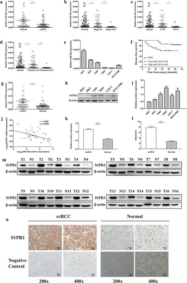 Expression and prognostic significance of miR-363 in ccRCC and its relationship with S1PR1 expression. a miR-363 expression levels were significantly downregulated in ccRCC tissues compared to adjacent normal tissues. b–d Comparison of miR-363 expression levels between subgroups of patients by clinical stage, T stage and Fuhrman grade. e miR-363 expression in normal renal cell lines and various RCC cell lines. f Kaplan–Meier analysis of ccRCC patients in the low miR-363 group (n = 39) and the high miR-363 group (n = 38) with regard to disease-free survival. g S1PR1 expression levels were markedly upregulated in ccRCC tissues compared to adjacent normal tissues. h and i S1PR1 protein expression in normal renal cell lines and various RCC cell lines. j Negative correlation between S1PR1 mRNA levels and miR-363 levels in ccRCC tissues (n = 77, r = −0.509, P