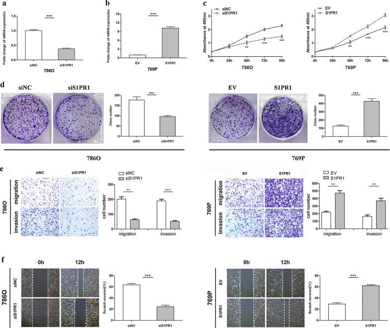 S1PR1 promotes the proliferation, migration and invasion of ccRCC cells in vitro. a Folds change of S1PR1 expression levels in 786O cells after knockdown with siRNA. b Folds change of the S1PR1 expression levels in 769P cells after overexpression with lentiviral S1PR1 plasmids. c MTS assay suggested that knockdown of S1PR1 inhibited the proliferation of 786O cells and that overexpression of S1PR1 promoted the proliferation of 769P cells. d Colony formation assay suggested that knockdown of S1PR1 inhibited the colony number in 786O cells and that overexpression of S1PR1 promoted the colony number in 769P cells. e Transwell assays suggested that knockdown of S1PR1 inhibits migration and invasion in 786O cells and that overexpression of S1PR1 promoted migration and invasion in 769P cells. f Wound healing assay suggested that knockdown of S1PR1 inhibited the cell mobility of 786O cells and that overexpression of S1PR1 promoted the cell mobility of 769P cells. Data are presented as the mean ± SD. (*P