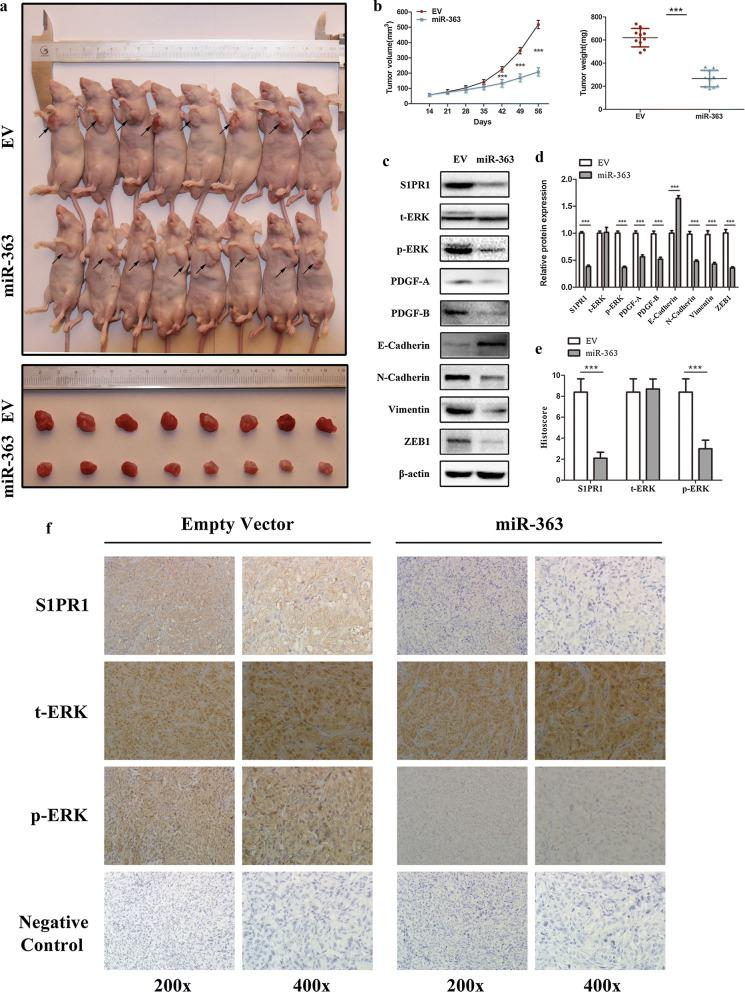 Overexpression of miR-363 suppresses xenograft tumour growth in vivo. a Xenograft tumours were obtained and dissected 8 weeks after subcutaneous injection of 786O cells stably transfected with lentiviral miR-363 particles or empty vector. b Comparison of tumour volume and weight between the miR-363 overexpression group and the EV group (10 mice per group). c , d Alterations in the protein levels of S1PR1, ERK and downstream genes of ERK in xenograft tumours between the miR-363 overexpression group and the EV group. e Histoscores of S1PR1, t-ERK and p-ERK in IHC-stained xenograft tumours between the miR-363 overexpression group and the EV group. f Representative IHC staining images of S1PR1, t-ERK, p-ERK and negative control in xenograft tumours between the miR-363 overexpression group and EV group. Data are presented as the mean ± SD. (*P