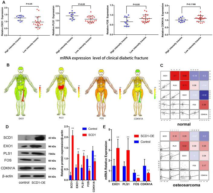 """CDKN1A, FOS, EXO1 and PLS1 are regulated by SCD1. ( A ) Independent t -test results for the association between mRNAs (EXO1, PLS1, FOS and CDKN1A) and trauma energy in patients with clinical diabetic fractures patients. ( B ) Human tissue-enriched protein expression map of EXO1, PLS1, CDKN1A and FOS. ( C ) In the bone marrow, PLS1 and EXO1 are highly expressed, whereas CDKN1A and FOS are relatively low. ( D ) A represent Western blot showing overexpression of SCD1 in BM-MSCs transduced with lentivirus (""""SCD1-OE""""). """"Control"""" cells are intact BM-MSCs before transduced with lentivirus. ( E ) Relative expression of mRNAs (EXO1, PLS1 FOS and CDKN1A) showing overexpression of SCD1 in BM-MSCs transduced with lentivirus (""""SCD1-OE""""); """"Control"""" cells are intact BM-MSCs before transduced with lentivirus."""