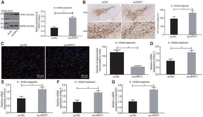 Overexpressed HPRT1 inhibits dopaminergic neuron loss in 6-OHDA-induced PD mice. 6-OHDA-induced PD mice were treated with oe-NC or oe-HPRT1. ( A ) Protein expression of HPRT1 in the substantia nigra tissues examined by western blot assay. ( B ) TH positive neurons in the substantia nigra examined by immunohistochemistry (upper × 100, lower × 400). ( C ) Fluoro-Jade B-stained apoptotic neurons (scale bar = 50 μm). ( D – G ) The mRNA expression of Nurr-1 ( D ), Pitx-3 ( E ), Ngn-2 ( F ) and NeuroD1 ( G ) in the substantia nigra tissues examined by RT-qPCR. * p