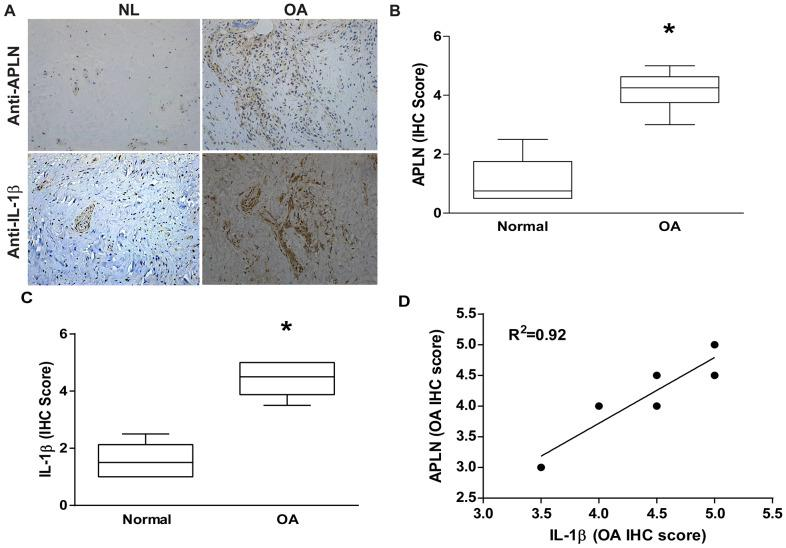 APLN expression is positively correlated with IL-1β expression in OA patients. ( A ) IHC staining showing increased levels of APLN and IL-1β expression in OA synovial tissue (n=8) compared to normal healthy tissue (n=5). ( B , C ) The IHC score of APLN and IL-1β are presented. ( D ) Correlation between levels of APLN and IL-1β expression in synovial tissues retrieved from OA patients.