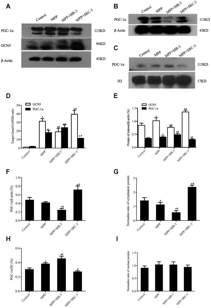 The cytosolic rather than the nuclear distribution of PGC-1α regulated by GCN5 in an MPP + -treated cell model. ( A ) The protein levels of GCN5 and PGC-1α; ( B , C ) The cytosolic levels of PGC-1α ( B ) and the nuclear levels of PGC-1α ( C ); ( D ) The relative transcriptional levels of GCN5 and PGC-1α normalized to GAPDH; ( E ) Semi-quantification of total GCN5 and PGC-1α proteins relative to β-actin; ( F , H ) Semi-quantification of the cytosolic ( F ) and the nuclear ( H ) PGC-1α proteins relative to β-actin; ( G , I ) The normalized cytosolic ( G ) and nuclear ( I ) proteins relative to the total protein; n=6, per group. * P