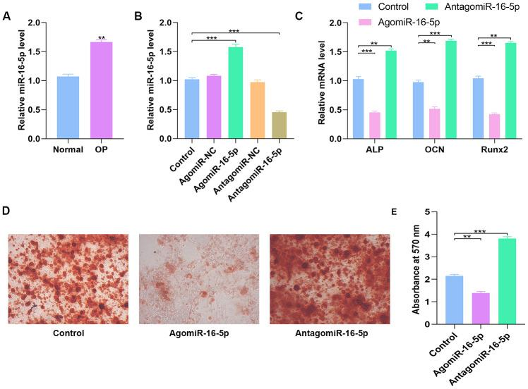 High miR-16-5p levels inhibit osteogenic differentiation in osteoporosis patients and hMSCs. ( A ) QRT-PCR analysis of miR-16-5p levels in postmenopausal patients with or without osteoporosis (n=10 per group). ( B ) QRT-PCR analysis of miR-16-5p levels in control hMSCs and hMSCs transfected with agomiR-NC, agomiR-16-5p, antagomiR-NC, and antagomiR-16-5p is shown. ( C ) QRT-PCR analysis shows the relative expression of osteogenic marker genes, ALP, OCN and RUNX2, in control hMSCs and hMSCs transfected with agomiR-NC, agomiR-16-5p, antagomiR-NC, and antagomiR-16-5p. ( D , E ) Alizarin red staining shows calcium deposition in control hMSCs and hMSCs transfected with agomiR-NC, agomiR-16-5p, antagomiR-NC, and antagomiR-16-5p for 21 days. Scale bar = 10 mm. Note: The data are represented as means ± SD. *p