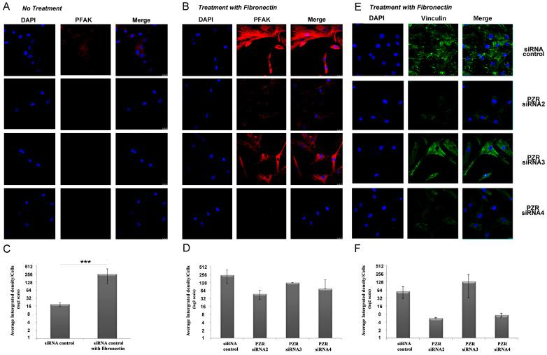 Knockdown of hPZR shows reduced phosphorylation of FAK and reduced vinculin in migrating hBM MSCs. ( A ) Representative confocal microscopy images of PFAK (red) and DAPI (blue) staining in migrating hBM MSCs ( A ) without or ( B ) with fibronectin and treated with siRNAs control, PZR2 , PZR3 , and PZR4 . Original magnifications, 63×. ( C ) Quantification of PFAK expression in siRNA control treated hBM MSCs migrating without or fibronectin. The average integrated density of PFAK/the number of cells is shown as means ± S.E.M. per 100 cells counted (*** p