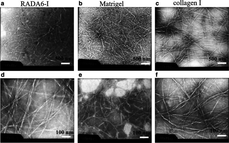 Negatively staining TEM images showed the nanofiber morphology of RADA16-I ( a , d ), Matrigel ( b , e ), and collagen I ( c , f ). RADA16-I, Matrigel, and collagen I were dissolved in 0.1 × PBS solution and self-assembled spontaneously, respectively. Three types of hydrogels all presented a collection of interwoven and disorganized nanofiber networks ultra-microarchitectures in saline solution. Scale bar represented different resolution in TEM images (top panels ( a – c ): ×8000; bottom panels ( d – f ): ×15,000)