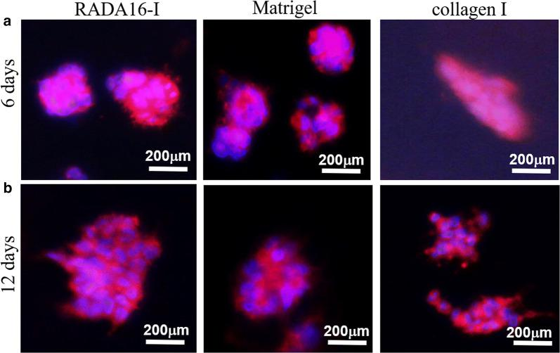 Cell-to-cell interactions and geometry arrangements of HO-8910PM cells in gel-cell clumps. HO-8910PM cells formed MCTS in three types of hydrogel matrices on days 6 ( a ) and days 12 ( b ). Gel-cell clumps of HO-8910PM cell line in RADA16-I, Matrigel and collagen I were harvested on day 6 and day 12. Immunofluorescence assay was performed to indicate cell-to-cell interactions and geometry arrangements in 3D cell culture. Red indicated F-actin and blue indicated DAPI-stained cell nuclear. Immunofluorescence images were obtained by an inverted Olympus IX71 microscope. The blue nuclear staining showed HO-8910PM cell arrangement in MCTS and the red staining surrounding blue nuclear envisioned the cell-to-cell adhesion or intercellular junction in MCTS