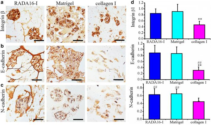 The cell distribution and molecular expression of integrin β1 ( a ), E-cadherin ( b ) and N-cadherin ( c ) in HO-8910PM cells cultured in RADA16-I hydrogel, Matrigel and collagen I for 7 days. The brown color indicated the viable proliferation cells, which revealed a solid tumor-like tissue architecture and MCTS formation that was stained by hematoxylin in sections. d Relative quantification of protein expression levels in RADA16-I hydrogel, Matrigel and collagen I. Immuno-expression of integrin β1, E-cadherin and N-cadherin was quantified as an index of positively staining area over total hematoxylin-staining section area in gel-cell clumps. **P