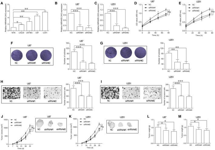 Knockdown of MIR4435‐2HG inhibited GBM cell proliferation and invasion and in vivo tumour growth. A, MIR4435‐2HG expression in normal human astrocytes (NHA) and GBM cell lines including LN229, U87MG, U87, and U251 was determined by qRT‐PCR (n = 3). B and C, qRT‐PCR showed the down‐regulation of MIR4435‐2HG expression in U87 (B) and U251 cells (C) by transfecting with MIR4435‐2HG siRNAs (siRNA#1 and siRNA#2), NC = scrambled siRNA (n = 3). D and E, CCK‐8 assay was utilized to determine the proliferative ability of the transfected U87 (D) and U251 (E) cells (n = 3). F and G, Colony formation assay was utilized to determine the cell growth of the transfected U87 (F) and U251 (G) cells (n = 3). H and I, Transwell invasion assay was utilized to assess the cell invasive ability of the transfected U87 (H) and U251 (I) cells (n = 3). J and K, In vivo tumour growth assay was used to determine the cell growth of the transfected U87 (J) and U251 (K) cells (n = 5). L and M, The weight of the dissected tumours was determined from NC (scrambled shRNA) group and shRNAs group (shRNA#1 and shRNA#2) (n = 5). * P