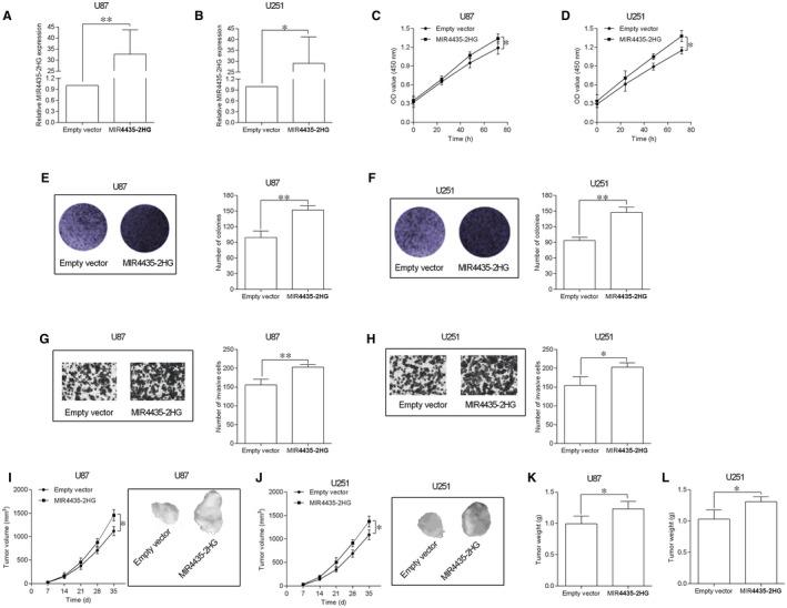 Overexpression of MIR4435‐2HG promoted GBM cell proliferation and invasion and in vivo tumour growth. A and B, qRT‐PCR showed the up‐regulation of MIR4435‐2HG expression in U87 (A) and U251 cells (B) by transfecting with pcDNA3.1‐MIR4435‐2HG; empty vector = pcDNA3.1 (n = 3). C and D, CCK‐8 assay was utilized to determine the proliferative ability of the transfected U87 (C) and U251 (D) cells (n = 3). E and F, Colony formation assay was utilized to determine the cell growth of the transfected U87 (E) and U251 (F) cells (n = 3). G and H, Transwell invasion assay was utilized to assess the cell invasive ability of the transfected U87 (G) and U251 (H) cells (n = 3). J and K, In vivo tumour growth assay was used to determine the cell growth of the transfected U87 (J) and U251 (K) cells (n = 5). L and M, The weight of the dissected tumours was determined from empty vector (pcDNA3.1) group and pcDNA3.1‐MIR4435‐2HG group (n = 5). * P