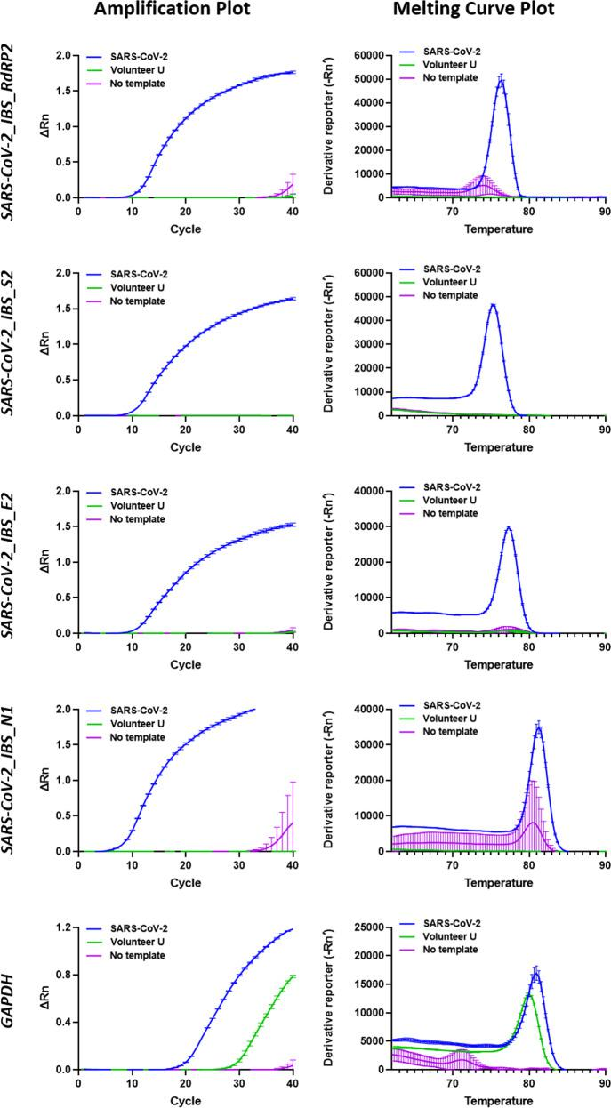 Improvement of the real-time PCR detection protocol for SARS-CoV-2. Real-time PCR was performed using the SARS-CoV-2 primer sets SARS-CoV-2_IBS_E2, SARS-CoV-2_IBS_RdRP2, SARS-CoV-2_IBS_S2, and SARS-CoV-2_IBS_N1. The GAPDH primer set was used as the IPC primer set. Each row represents each primer set. On the left, each graph represents an amplification plot, which shows the variation of log (ΔRn) values against the PCR cycle number. The Y axis represents the normalized reporter value (Rn), which was calculated as the fluorescence signal from SYBR Green normalized to the fluorescence signal of a reference dye. The graphs on the right represent the melting curve plots, which display data collected during a melting curve stage. Peaks in the melting curve may indicate the melting temperature ( T m ) of a target or identify nonspecific PCR amplification. On the Y axis, the derivative reporter (−Rn′) was calculated as the negative first derivative of Rn generated by the reporter during PCR amplification. The green curve is for the Volunteer U cDNA sample. The blue curve is for the SARS-CoV-2 cDNA. The purple curve is for the no-template condition. All data are represented as the mean ± S.E.M.