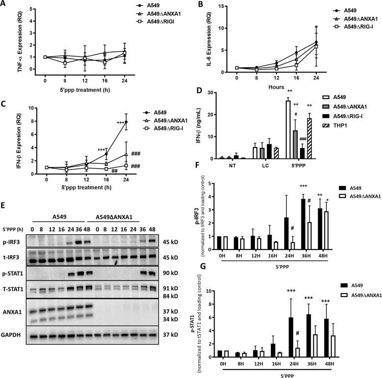 ANXA1 promotes IFNβ production and more rapid IRF3 activation after RIG-I stimulation. Cells were transfected with Lyovec control or 1 μg/ml of 5′ppp-RNA with Lyovec. a – c TNF-α, IL6, and IFNβ expression was measured with quantitative real-time PCR after the indicated times. d IFNβ production was measured using ELISA after 48 h. e Lysates were collected at indicated times after 5′ppp-RNA transfection and assayed for the indicated proteins. Blots are representative of three independent experiments. e , f Phosho-IRF3 or STAT1 was quantified and normalized to their respective total proteins and actin. Data is represented as mean ± SEM of n = 4 independent experiments. * P