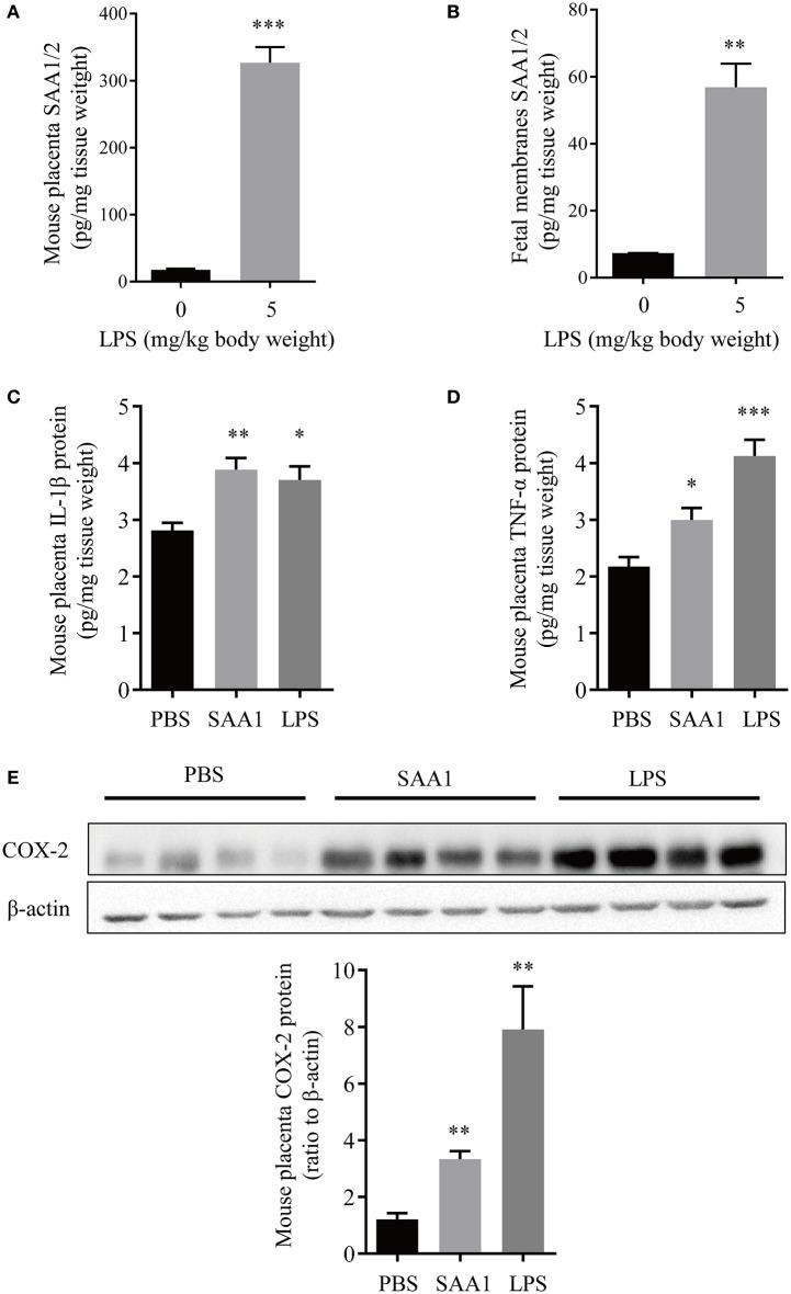 Induction of proinflammatory factors in placenta and fetal membranes by intraperitoneal administration of LPS or SAA1 in the mouse. (A,B) Induction of SAA1/2 expression in mouse placenta (A) and fetal membranes (B) by intraperitoneal administration of LPS (5 mg/kg BW, 6 h) at gestational day 16.5 ( n = 3). (C–E) Induction of IL-1β (C) , TNF-α (D) and COX-2 (E) in the mouse placenta by intraperitoneal administration of LPS (5 mg/kg BW, 6 h) and SAA1 (8 μg/kg BW, 6 h) at gestational day 16.5 ( n = 4). Data are mean ± SEM. * P