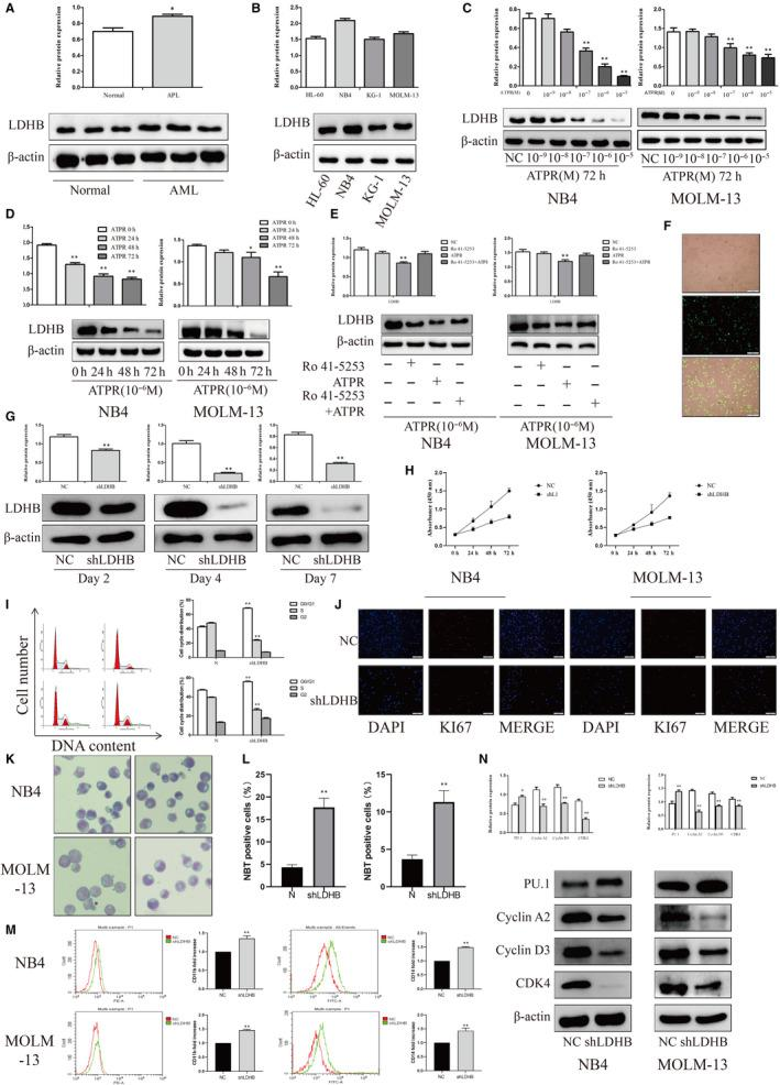 Knockdown LDHB expression inhibits proliferation while promoting differentiation and glycolysis of AML cells. (A) Western analysis of LDHB expression in AML patients PBMC compared with normal human PBMC (Mean ± SD, n = 3). (B) Western analysis of LDHB expression in AML cell lines (Mean ± SD, n = 3). (C, D) After treatment with ATPR (0, 10 −9 , 10 −8 , 10 −7 , 10 −6 , or 10 −5 M) for different durations (24–72 h). The protein expression of LDHB was assessed by Western blotting (Mean ± SD, n = 3). (E) NB4 and MOLM‐13 cells were treated with ATPR in the absence or in the presence of the RARα‐selective antagonist Ro 41‐5253. The protein expression of LDHB was assessed by Western blotting (Mean ± SD, n = 3). (F) Stable control and shLDHB‐transfected NB4 cells were observed by inversed fluorescent microscope. (G) The protein expression of LDHB was assessed by Western blotting after treatment with shLDHB for 7 days (Mean ± SD, n = 3). (H) Cell growth of NB4 and MPOLM‐13 cells after transfection with shLDHB as determined by the CCK‐8 assay at different time points (Mean ± SD, n = 3). (I) The cell cycle distribution was analysed by flow cytometry in NB4 and MOLM‐13 cells after LDHB depletion (Mean ± SD, n = 3). (J) Immunofluorescence was used to detect KI67 in NB4 and MOLM‐13 cells after LDHB depletion. (K) After LDHB depletion, NB4 and MOLM‐13 cells were stained with Wright‐Giemsa dye and the cell morphological features were observed under a microscopy. (L) NBT reduction experiment was performed to count the positive cell rate (Mean ± SD, n = 3). (M) CD11b and CD14 expression were analysed by flow cytometer in NB4 and MOLM‐13 cells after LDHB depletion (Mean ± SD, n = 3). (N) The protein expression of PU.1, Cyclin A2, CDK4 and Cyclin D3 was assessed by Western blotting after LDHB depletion (Mean ± SD, n = 3). * P