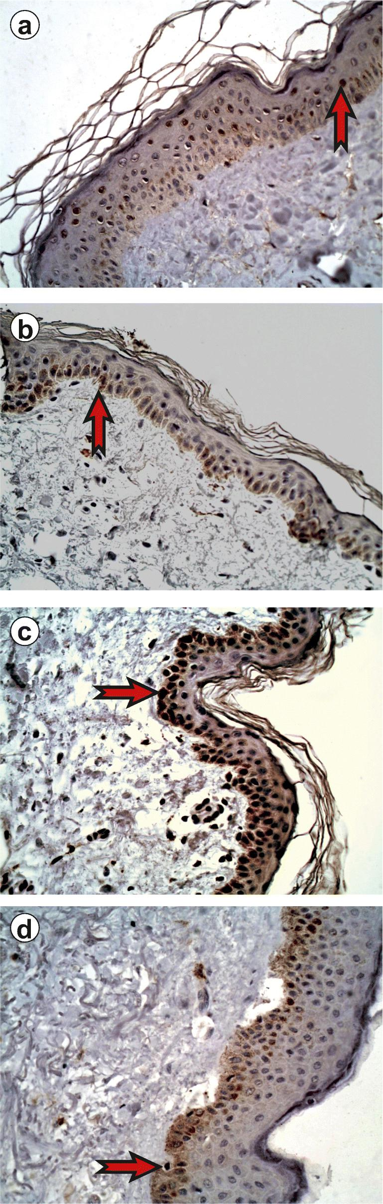 Immunoexpression of JAK/STAT proteins in the epidermis, normal skin, × 400. a Immunoexpression of JAK3 in the epidermis, normal skin, 10.73 ± 3.36. b Immunoexpression of STAT2 in the epidermis, normal skin, 11.06 ± 5.34. c Immunoexpression of STAT4 in the epidermis, normal skin, 18.59 ± 3.01. d Immunoexpression of STAT6 in the epidermis, normal skin, 11.56 ± 2.84