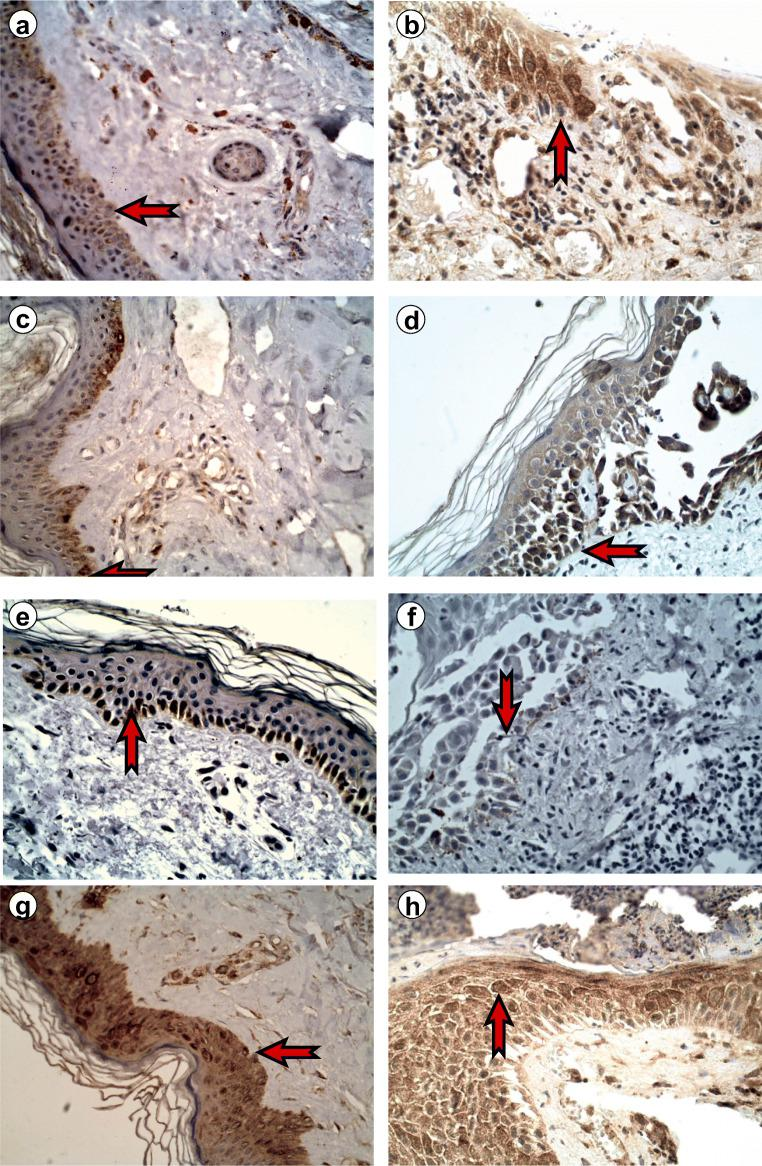 Immunoexpression of JAK/STAT proteins in the epidermis, pemphigus vulgaris, × 400. Immunoexpression of JAK3 in the epidermis: a perilesional skin 14.38 ± 3.61; b skin lesions 18.89 ± 4.67, p > 0.05. Immunoexpression of <t>STAT2</t> in the epidermis: c perilesional skin 15.79 ± 2.06; d skin lesions 17.15 ± 2.81, non-significant. Immunoexpression of STAT4 in the epidermis: e perilesional skin 24.10 ± 3.40; f skin lesions 29.08 ± 4.38, p