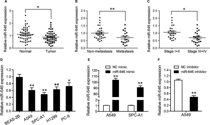 MiR‐646 is downregulated in NSCLC tissues and cell lines. (A) qRT‐PCR assay was performed to quantify miR‐646 expression in 49 pairs of NSCLC tissues and adjacent noncancerous lung tissues. (B) miR‐646 expression in metastatic and nonmetastatic NSCLCs. (C) miR‐646 expression in different clinical stages of NSCLCs. (D) The endogenous levels of miR‐646 in four NSCLC cell lines (A549, SPC‐A1, H1299, and PC‐9) and the normal human bronchial epithelial cell line (BEAS‐2B). (E) qRT‐PCR analysis of miR‐646 expression in A549 and SPC‐A1 cells transfected with miR‐646 mimic or NC mimic. (F) qRT‐PCR analysis of miR‐646 expression in A549 cells transfected with miR‐646 inhibitor or NC inhibitor. * P