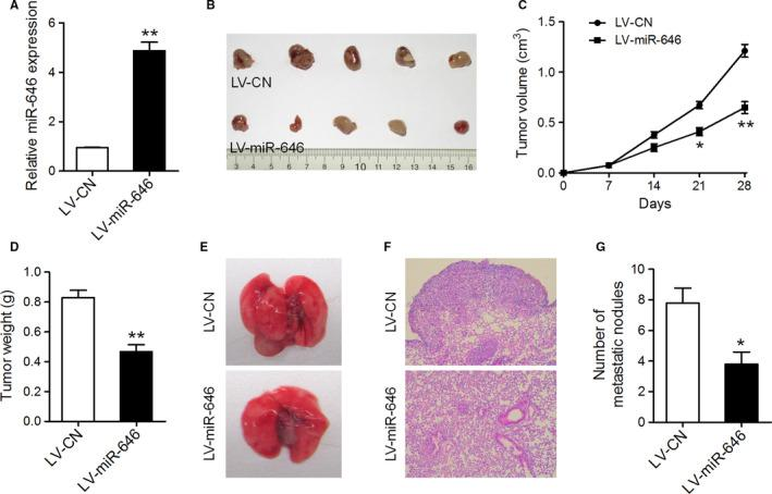 MiR‐646 attenuated tumor growth and metastasis in vivo. (A) qRT‐PCR analysis of miR‐646 expression in A549 cells infected with miR‐646 overexpression or control lentivirus. (B) Flank tumors were established in nude mice after injection with miR‐646 overexpression or control cells. The mice were killed 4 weeks after flank injection and representative tumors were shown. (C) Growth curves of xenograft tumors. (D) Tumor weight. (E) Representative images of lungs isolated from mice that received tail vein injection of miR‐646 overexpression or control cells. (F) Representative images of HE staining of lungs. (G) The numbers of pulmonary metastatic nodules in the lungs. * P