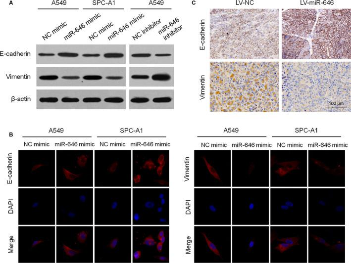MiR‐646 suppresses EMT process in NSCLC. (A) Western blotting analysis of E‐cadherin and vimentin expression in A549 and SPC‐A1 cells with miR‐646 mimic or inhibitor transfection. (B) Immunofluorescence staining of E‐cadherin and vimentin in A549 and SPC‐A1 cells with miR‐646 mimic transfection. (C) Immunohistochemical staining for E‐cadherin and vimentin in subcutaneous tumors formed with A549 carrying LV‐miR‐646 or LV‐NC. * P