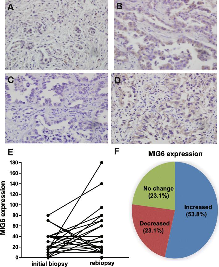 Comparison of Mig-6 expression in lung adenocarcinoma at baseline and after acquiring <t>EGFR-TKI</t> resistance. a–d Representative pictures of Mig-6 by immunohistochemistry in cases 1 and 2. a and c are initial biopsy samples. b and d are matched re-biopsy samples of case 1 and 2. The expression of Mig-6 in re-biopsy samples were significantly higher than those of initial biopsy samples. e and f Analysis of Mig-6 expressions at baseline and after acquiring EGFR-TKI resistance ( n = 26)