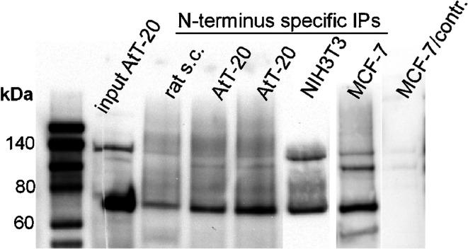 Lane 1: <t>biotinylated</t> molecular weight marker. Lane 2: SDS extract of AtT-20 whole cell lysate probed with the C-terminus-specific antibody. To show the specificity of the antibody, lane 2 was cut into two halves prior to incubation with the primary antibody (cutting line indicated by a punctate vertical line) and both parts were incubated in separate trays with different antisera. The left side of lane 2 was incubated as control with an antiserum against green fluorescent protein, while the right part of lane 2 was incubated with the FRMD6 C-terminus-specific antiserum. Both parts of lane 2 were finally put together again before chemiluminescence imaging. A single specific band at 70 kDa is apparent solely on the right part of lane 2 exposed to the FRMD6 C-terminus-specific antibody, while the left part shows no signal at the corresponding molecular weight. Lanes 3–7: FRMD6 immunoprecipitation in different tissues with the FRMD6 N-terminus-specific antiserum. Immunoprecipitates (IPs) were probed with the FRMD6 C-terminus-specific antibody as in lane 2. Lane 3: a homogenate of rat spinal cord displays no significant band. Lanes 4 and 5: homogenates from two different AtT-20 cell cultures with identical cell densities. A specific band at 70 kDa but with variable intensity is apparent. Lanes 6 and 7: NIH3T3 and MCF-7 cultures, respectively. Lane 8: a control is shown performed under identical conditions with a parallel MCF-7 culture, except that for immunoprecipitation, a rabbit antiserum raised against an unrelated protein (human SGSM3) was used. The entire blotting membrane area is displayed in ESM, Fig. S3 a