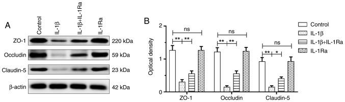 IL-1β treatment decreased the expression of tight junctional proteins in RBECs (n=4). (A) Immunoreactive bands of ZO-1 (220 kDa), occludin (59 kDa), claudin-5 (23 kDa) and β-actin (42 kDa). (B) There was decreased tight junctional protein expression in the IL-1β group compared with the control group (ZO-1: ** P