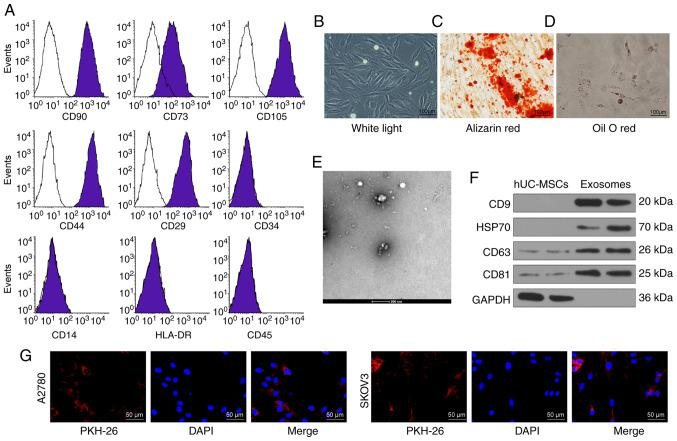Identification of hUCMSCs and their derived exosomes. (A) Expression of MSCs surface markers, including CD29, CD44, CD73, CD90, CD105, CD14, CD34, CD45 and HLA-DR, analyzed by flow cytometry. (B) hUCMSC morphology at passage 3 observed under a light microscope. Scale bar, 100 µ m. (C) Representative images of osteogenic differentiation of hUCMSCs using Alizarin Red staining. Scale bar, 100 µ m. (D) Representative images of adipogenic differentiation of hUCMSCs using Oil red O staining. Scale bar, 100 µ m. (E) Morphological analysis of hUCMSC by transmission electronic microscopy. Scale bar, 200 nm. (F) Detection of exosomal marker expression in hUCMSC-released exosomes by western blotting. (G) Internalization of PKH26-labeled exosomes by SKOV3 and A2780 cells was observed under a fluorescence microscope. Scale bar, 50 µ m. hUCMSCs, human umbilical cord mesenchymal stem cells.