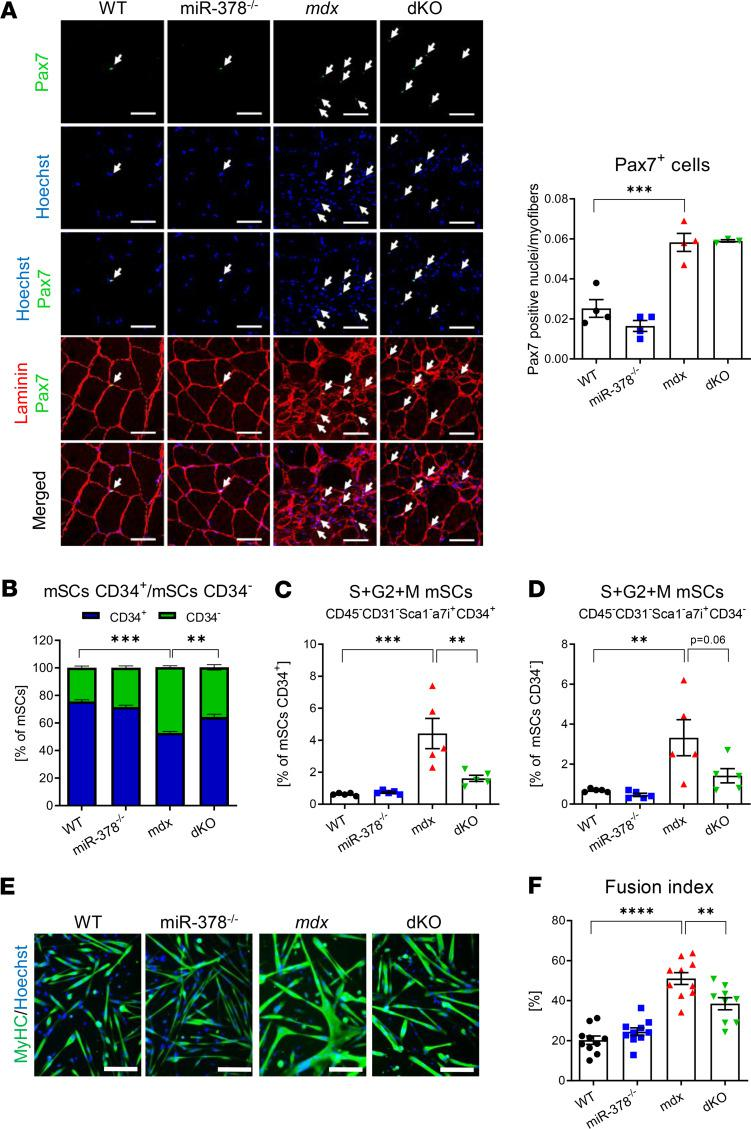 The KO of miR-378 affects the phenotype and properties of dystrophic muscle satellite cells (mSCs). ( A ) The abundance of mSCs within the gastrocnemius muscle of 3-month-old mdx mice without the apparent influence of miR-378, as quantified based on Pax7 + nuclei per myofibers. Immunofluorescent staining with representative pictures; confocal microscope LSM-510, Carl Zeiss. Scale bar: 50 μm; n = 3–4/group. Arrows indicate Pax7 + cells (green) colocalizing with nuclei stained with Hoechst (blue). ( B–D ) The analysis of mSCs in hind limb muscles of 10-week-old mice; flow cytometry analysis; n = 5/group. ( B ) quiescent (CD34 + ) and activated (CD34 – ) cells contribution within mSCs (CD45 – CD31 – Sca1 – α7i + ) population showing a decrease in CD34 – cells in dKO mice. The percentage of CD34 + ( C ) and CD34 – ( D ) mSCs in S + G2 + M phases of the cell cycle, revealing a decreased percentage of mSCs in the proliferative state of the cell cycle in dKO mice. ( E ) Representative pictures of MyHC (green) and Hoechst (blue) immunofluorescent staining of mSCs isolated from hind limb muscles of 10-week-old mice differentiating for 3 days ex vivo. Nikon Eclipse microscope. Scale bar: 100 μm; n = 9–10/group. ( F ) Fusion index determined by the percentage of MyHC + fibers containing 3 or more nuclei among the total number of nuclei showing a significant decrease in the fusion index in dKO mice; n = 9–10/group. Data are presented as mean ± SEM. ** P