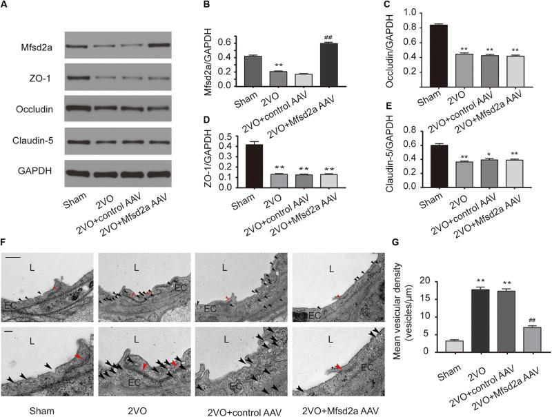 Effect of Mfsd2a overexpression on BBB tight junctions and vesicular transcytosis in the rat hippocampal CA1 region. (A–E) The expression of BBB permeability-related proteins, including Mfsd2a, ZO-1, claudin-5, and occludin in each group. * P