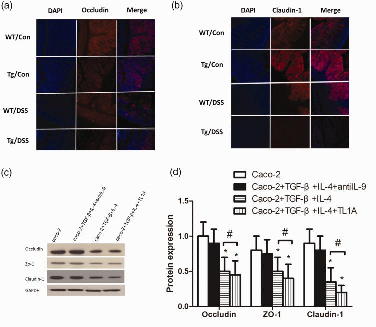 TL1A aggravates the intestinal mucosal barrier injury. (a) Immunofluorescence of occludin. (b) Immunofluorescence of claudin-1. (c, d) The expression of occludin, zonulin-1, and claudin-1 in Caco-2 cells. * P