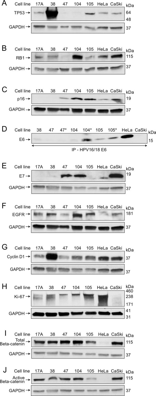Biomarker expression by Western blotting during exponential growth phase. TP53 (A), RB1 (B), p16 (C), E6 (D), E7 (E), EGFR (F), Cyclin D1 (G), Ki-67 (H), total beta-catenin (I), and active beta-catenin (J). Protein was loaded at 50 μg per lane for all biomarkers except for total beta-catenin and active beta-catenin, which were loaded with 25 μg of protein. GAPDH was included as a loading control. (C and F) The same GAPDH staining was used since p16 and EGFR were probed from the same blot. (D) E6 was the only protein that was immunoprecipitated prior to WB due to its weaker expression. As a result, it was not possible to show a loading control. E6 was probed both in early (days 5-6) and later exponential growth phase (days 9-10, indicated by *). (G) Cyclin D1 staining was stripped to detect GAPDH.