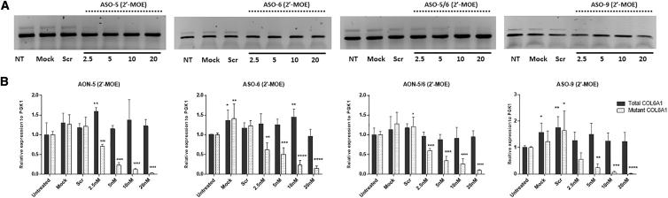 The Efficiency of ASOs in 2′-MOE Backbone in Pseudo-Exon Skipping at RNA Level (A) Representative picture of PCR products from fibroblasts treated with ASO-5, ASO-6, ASO-5/6, or ASO-9 in 2′-MOE backbone for 24 h with Lipofectamine transfection. (B) Quantitative real-time PCRs of total COL6A1 and mutant COL6A1 transcripts were performed in RNA samples collected from four patient skin fibroblasts treated with ASO-5, ASO-6, ASO-5/6, or ASO-9 at concentrations ranging from 2.5 to 20 nM. Data are presented as mean ± SD. Data were analyzed by one-way ANOVA and post-Bonferroni test (∗p ≤ 0.05; ∗∗p ≤ 0.01; ∗∗∗∗p ≤ 0.0001).