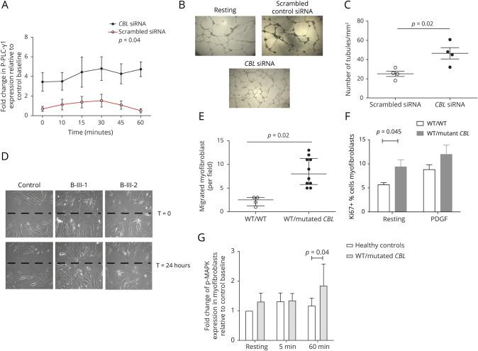Enhanced angiogenesis in siRNA CBL-transfected endothelial cells and enhanced proliferation, migration, and PDFGR-induced tyrosine kinase signaling in smooth muscle cells (SMCs) from patients with heterozygous CBL mutation (A) Human umbilical endothelial vein cells (HUVECs) were transfected with siRNA targeting CBL or a scrambled siRNA control and then stimulated with 20 ng/mL VEGF for the indicated periods of time before staining to explore expression of phosphorylated PLC-γ1. Silencing of CBL resulted in significant upregulation of relative phosphorylated-PLC-γ1 expression in siRNA CBL transfected cells compared with control scrambled transfected HUVECs, p = 0.04. (B) Representative images of HUVEC capillary network formation on matrigel for resting endothelial cells, scrambled control siRNA, and CBL siRNA-transfected endothelial cells. Five independent fields were assessed for each well and the mean numbers of tube branches determined. (C) There was enhanced HUVEC capillary network formation in a matrigel assay in siRNA CBL- transfected cells compared with scrambled control cells, p = 0.02. (D and E) Human dermal fibroblast cells (HDFCs) from patients with heterozygous CBL mutations were treated with 5 ng/mL transforming growth factor 1 for 14 days to induce trans-differentiation into SMCs. A standard scratch assay was then performed on cultured monolayer of SMCs derived from HDFCs of healthy controls and patients with CBL mutations. There was an increase in migration of SMC patients with heterozygous CBL mutations compared with control WT/WT cells, p = 0.02. (F) Patient-derived SMC-like cells/myofibroblasts also exhibited enhanced proliferation when compared with control cells, p = 0.045. (G) SMC-like cells/myofibroblasts were stimulated with 20 ng/mL PDGF for the indicated periods of time before staining to explore changes in phosphorylated MAPK expression. There was enhanced phosphorylation of MAPK at 60 minutes induced by PDGF receptor in patient-derived SMCs