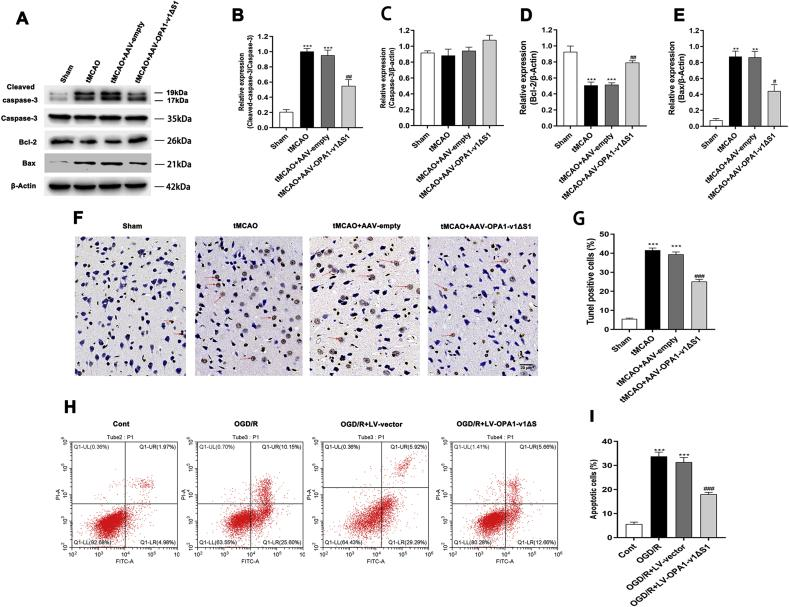 The inhibited cerebral ischemia/reperfusion injury-induced neuronal apoptosis in vivo and in vitro by OPA1-v1 Δ S1 expression. (A–D) Representative immunoblots (A) and quantitative results of the levels of Cleaved caspase-3(B), Caspase-3(C) and Bcl-2(D) and in the cortex of different experimental groups; n = 4. Data are expressed as mean ± SEM. One-way analysis of ANOVA with Bonferroni's post hoc test was used. *** p