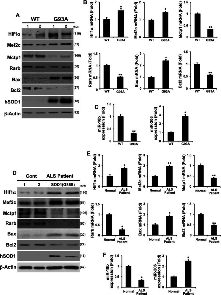 Downregulated miR-18b (miR-18b-5p) by SOD1 mutations contributes apoptotic cell death in SOD1(G93A) Tg mice and fALS patient spinal cord tissues. a Hif1α, Mef2c and Bax expression were increased in G93A mice. Mctp1, Rarb and Bcl2 proteins were decreased in G93A mice. b mRNAs of Hif1α, Mef2c and Bax was highly expressed in G93A mice. Mctp1, Rarb and Bcl2 transcripts were significantly downregulated in G93A mice. c miR-18b (miR-18b-5p) was deeply reduced and miR-206 was dramatically induced in G93A mice ( n = 5). d The protein levels of Hif1α, Mef2c and Bax was upregulated in fALS (G86S) patient (Cervical and lumber). Mctp1, Rarb and Bcl2 proteins were decreased in fALS (G86S) patient. Normal spinal cord tissues (Cervical (control 1 and 2) served as a negative control (Cont). e The transcripts of Hif1α, Mef2c and Bax was highly upregulated in fALS (G86S) patient (Cervicals). Mctp1, Rarb and Bcl2 transcripts were significantly downregulated in fALS (G86S) patient. f miR-18b (miR-18b-5p) expression was importantly decreased and miR-206 was highly expressed in fALS (G86S) patient (Cervial and Lumber). Normal spinal cord tissues (Cervicals (control 1 and 2) served as a negative control (Cont). hSOD1 immunoreactivity on western blots of the insoluble fraction of the G93A mice and fALS (G86S) patients tissues. Significantly different at *, p