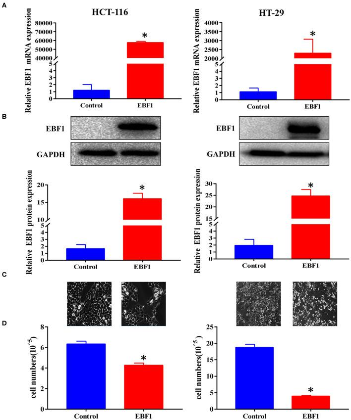 EBF1 over-expression suppresses CRC cell growth in vitro . (A,B) HCT-116 and HT-29 cells were stably transduced with EBF1 or control. The cells were evaluated at a fixed time in culture. (A) Q-PCR and (B) western blot were performed to determine the expression of EBF1. GAPDH was used as an internal control. (C) Cell confluence of transduced HCT-116 and HT-29 cells were imaged using a phase contrast fluorescence microscope in light at a magnification of 200×. (D) Cell number was determined with a Countstar Automated Cell Counter. * P
