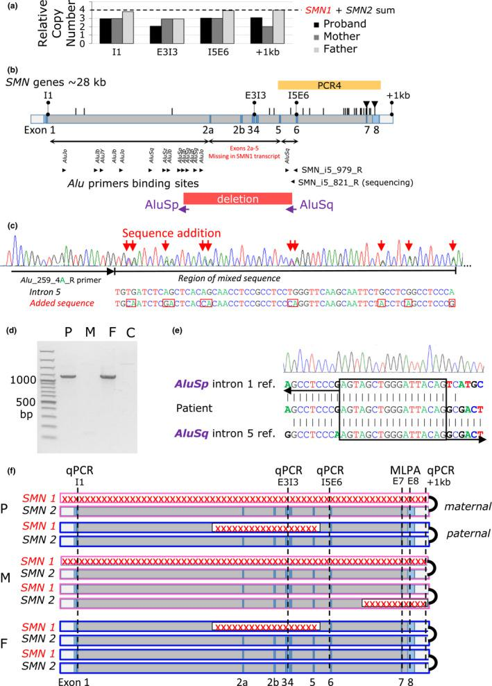 Identification of SMN1 variants. (a) qPCR analysis of four retrotransposon‐free SMN genomic regions in the intron 1 (I1), in the exon 3–intron 3 junction (E3I3), in the intron 5–exon 6 junction (I5E6), and ~1 kb downstream from exon 8 (+1 kb). Compared with four copies of SMN genes that are present in controls, we found that the patient has three copies at the I1, I5E6, and +1 kb loci and two copies at the E3I3 loci. The mother has three copies through the I1 to I5E6 loci and two copies at the +1 kb loci. The father has three copies only at the I5E6 loci. (b) Schematic representation of SMN1/2 exon (E)/intron (I) structure. Positions of sequence differences between SMN1 and SMN2 are represented by black vertical bars. The black triangles denote sequence‐specific variants in exons 7, 8 targeted by MLPA probes in routine testing. Locations of Alus in the breakpoint candidate regions in the intron 1 and 5, including the causal AluSp in the intron 1 and AluSq in the intron 5 indicated by vertical text, and primers binding sites for Alu <t>PCR</t> indicated by black arrowheads are shown below the scheme of the SMN structure. Position of the PCR4 spanning exons 5–8 that showed absence of SMN1 sequence‐specific variants indicating disruption of both SMN1 alleles in the patient is represented by yellow box. Range of the paternal deletion of exons 2a‐5 is represented by red box. (c) <t>DNA</t> sequence trace of the Alu PCR, Alu_259_4A, showing a double sequence caused by presence of AluSq wt in intron 5 together with a sequence originating from the intron 1 AluSp . Red arrows indicate the addition of AluSp ‐specific sequence in an Alu PCR product. (d) PCR genotyping of the SMN1Δ(2a‐5) variant showed presence of the deletion‐spanning amplification product in the patient (P) and father (F), but not in mother (M) and control (C). (e) DNA sequence trace of the breakpoint junction‐specific PCR and detail of the Δ2a‐5 breakpoint junction show the new Alu ‐ Alu chimeric element originating from the recombination between the AluSp in the intron 1 and AluSq in the intron 5. A breakpoint microhomology of the AluSp and AluSq is marked with a black box. (f) Schematic representation of SMN1 and SMN2 in the family members. Pink‐marked boxes represent maternal alleles (M) and blue boxes paternal alleles (F). The red crosses denote identified deletions and the dashed vertical lines denote loci of the qPCR (I1, E3I3, I5E6, and +1 kb) and MLPA (exon 7‐E7, exon 8‐E8) probes used for deletion mapping. The black junctions on the box terminals indicate a cis configuration of SMN1 and SMN2 alleles. The model shows (a) a whole deletion of one SMN1 allele in the patient (P) inherited from her mother and detected by the combination of the qPCR and MLPA; (b) a deletion of the second SMN1 allele in the patient inherited from her father and detected by the E3I3 qPCR and transcript analysis (Figure 1a ); and (c) deletion of one copy of one SMN2 allele in the mother detected by the MLPA and the + 1kb qPCR
