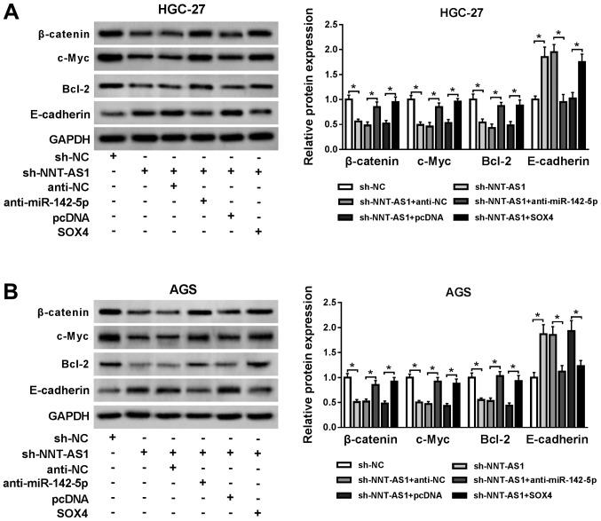 NNT-AS1 knockdown blocks the Wnt/β-catenin signaling pathway via the miR-142-5p/SOX4 axis. Protein expression levels of β-catenin, c-Myc, Bcl-2 and E-cadherin in (A) HGC-27 and (B) AGS cells transfected with sh-NC, sh-NNT-AS1, sh-NNT-AS1 + anti-NC, sh-NNT-AS1 + anti-miR-142-5p, sh-NNT-AS1 + pcDNA or sh-NNT-AS1 + SOX4. *P
