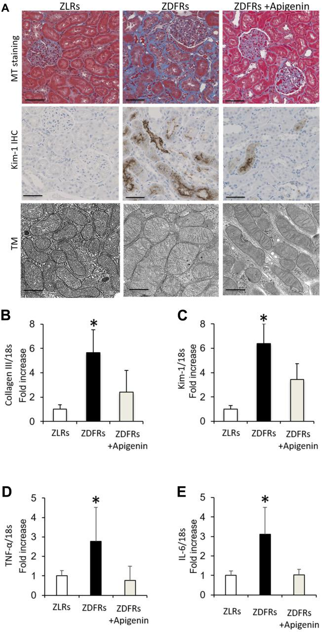 Apigenin ameliorates renal fibrosis and inflammatory gene expression in diabetic rats. ( A ) Representative photographs of MT staining (scale bar: 100 μm) and IHC of Kim-1 in the tubulointerstitial area (scale bar: 100 μm) and the mitochondrial morphology observed under transmission electron microscopy (TM) scale bar: 500 nm). ( B – E ) Quantitative RT-PCR of collagen III ( B ), Kim-1 ( C ), TNF-α ( D ), and IL-6 ( E ) mRNA normalized to expression of 18S, in the renal cortex (n=6). All data represent the mean ± standard deviation (SD). *p