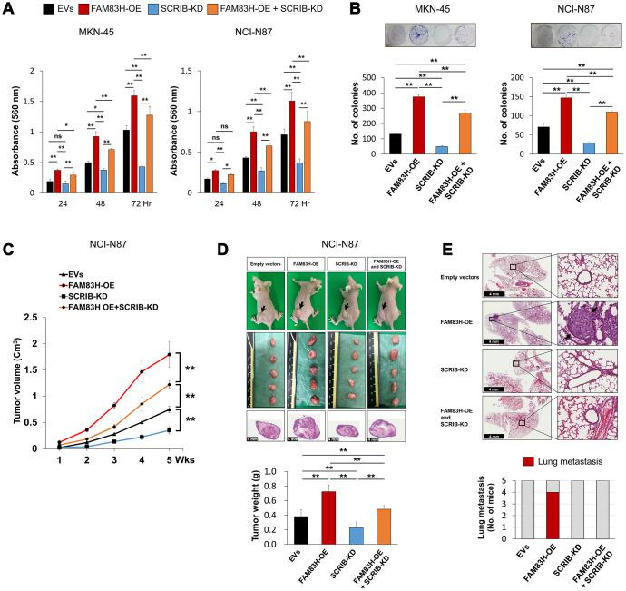 The combined effect of overexpression of FAM83H and knock-down of SCRIB on the proliferation and tumor formation of gastric cancer cells. ( A , B ) The effect of overexpression of FAM83H and/or knock-down of SCRIB on the proliferation of MKN45 and NCI-N87 gastric cancer cells were evaluated with an MTT assay ( A ) and a colony-forming assay ( B ). The MTT assay was performed after seeding 3,000 cells per well of a 96-well plate. The colony-forming assay was performed by plating 1,000 cells per well in a 6-well plate for ten days. The number of colonies was determined with GeneTools analysis software. ( C , D ) In vivo tumor growth was evaluated by subcutaneously implanting 2x10 6 NCI-N87 cells with overexpression of FAM83H and/or knock-down of SCRIB. The tumor volume was measured every week after tumor implantation by the equation V = LxWxHx0.52 mm 3 ( C ). At five weeks after tumor inoculation, the mice were euthanized and tumor weight was measured ( D ). ( E ) The mice were evaluated for metastasis and histologic findings of the lung. The arrows indicate metastatic NCI-N87 cells in lung. *; P