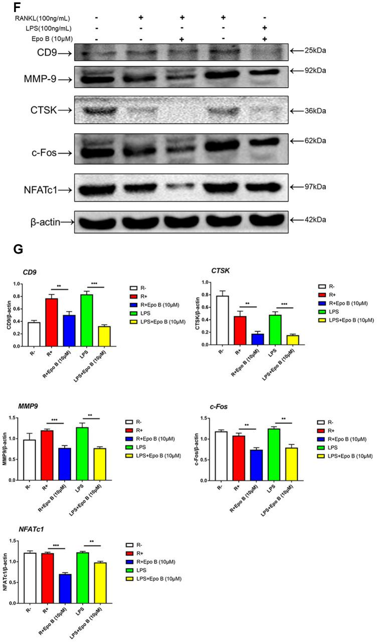 Epothilone B suppressed NFATc1 nuclear translocation and the expression of marker genes during osteoclastogenesis. ( F ) Relative expression of marker genes in the procedure of RANKL or LPS induced osteoclastogenesis on protein level. ( G ) Quantification of CTSK, MMP9, c-Fos, NFATc1 and CD9 relative to β-actin. Data in the figures represent mean ± SD. N.S. represented no significant difference. *p