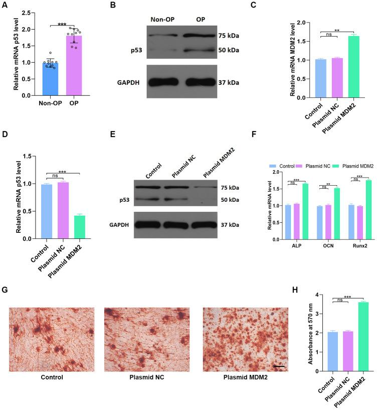 MDM2-mediated p53 degradation induces osteoblast differentiation in vitro . ( A , B ) p53 levels in non-OP patients and OP patients were measured by qRT-PCR and western blot; n=10 per group. ( C ) MDM2 expression in hMSCs was assessed by qRT-PCR analysis after different treatments. ( D – E ) p53 levels were measured by qRT-PCR and western blot in the three groups. ( F ) Osteogenic gene levels were measured by qRT-PCR. ( G – H ) Alizarin red-mediated calcium staining in hMSCs 21 days after transfection with different constructs. Scale bar = 10mm. Data are means ± SD. *p