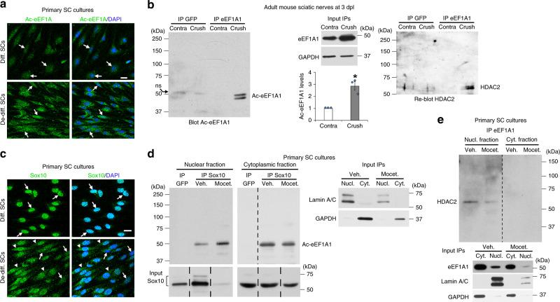 Sox10 re-localizes to the cytoplasm with Ac-eEF1A1 in de-differentiated SCs. Immunofluorescence of Ac-eEF1A ( a ) and Sox10 ( c ), and DAPI (nuclei) labeling in differentiated and de-differentiated SCs. b Immunoprecipitation (IP) of eEF1A1 or GFP (control) carried out on the same pool of two adult mouse crushed or unlesioned contralateral sciatic nerves at 3dpl and Western blot of Ac-eEF1A followed by HDAC2. EEF1A1 and GAPDH Western blots on lysates show the input, n = 3 (6 animals). The graph shows the quantification of Ac-eEF1A levels (measured on a longer exposure to obtain a value for the contra IP eEF1A1) normalized to eEF1A1 input. Data are presented as mean values ± SEM. Paired two-tailed Student's t -tests, p value = 0.03376. IP Sox10 or GFP ( d ) or IP eEF1A1 ( e ) followed by Ac-eEF1A ( d ) or HDAC2 ( e ) Western blot in nuclear and cytoplasmic fractions of primary SCs cultured under de-differentiating conditions and treated with the HDAC1/2 inhibitor mocetinostat or its vehicle for 3 days. Lamin A/C (nuclear marker), GAPDH (cytoplasmic marker), Sox10 and eEF1A1 Western blots on lysates used for IP show the inputs. Dashed lines indicate that samples were run on the same gel but not on consecutive lanes. Arrows point to SC nuclei ( a , c ) and arrowheads ( c ) to SC cytoplasm. a – e Representative images of 3 independent experiments are shown. Scale bars: 10 µm. Source data are provided as a Source Data file.