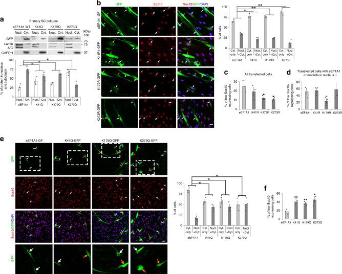 EEF1A1 acetylation increases eEF1A1 nuclear localization and decreases Sox10 levels. a GFP Western blot in nuclear (Nucl.) and cytoplasmic (Cyt.) fractions of primary SCs cultured 1 day under de-differentiating conditions and transfected with eEF1A1-GFP, K41Q-GFP, K179Q-GFP or K273Q-GFP and % of protein localized in nucleus or cytoplasm normalized to Lamin A/C and GAPDH ( n = 3 independent experiments per group). b – d Sox10 immunofluorescence with GFP fluorescence and DAPI (nuclei) labeling in SCs overexpressing eEF1A1-GFP, K41R-GFP, K179R-GFP or K273R-GFP and cultured under de-differentiating conditions for 3 days, and % of cells with eEF1A1 or mutants localized in cytoplasm only (Cyt. only) or in nucleus and cytoplasm (Nucl. + Cyt., b ) or % of low Sox10-expressing cells ( c , d ). N = 3 independent experiments per group, 18-84 cells counted per group per n . e , f Sox10 immunofluorescence with GFP fluorescence and DAPI (nuclei) labeling in SCs overexpressing eEF1A1-GFP, K41Q-GFP, K179Q-GFP or K273Q-GFP and cultured under proliferating conditions for 2 days, and % of cells with eEF1A1 or mutants localized in cytoplasm only or in nucleus and cytoplasm of SCs ( e ) or % of low Sox10-expressing cells ( f ). The lower images are magnifications of the dashed white boxes on the upper images. N = 3 independent experiments per group, 17–71 cells counted per group per n. Arrows show transfected SCs. Orange arrows indicate SCs where eEF1A1 or the mutants are present in the nucleus of SCs. Scale bars: 10 µm ( b ), 20 µm ( e ). Data are presented as mean values ± SEM. Unpaired one-tailed (gray asterisks) or two-tailed (black asterisks) Student's t -tests, p values = 0.029415 ( a , K41Q), 0.04884 ( a , K179Q), 0.0329 ( a , K273Q), 0.023698 ( b , K41R), 0.008772 ( b , K179R), 0.00946 ( b , K273R), 0.189827 ( c , K41R), 0.027448 ( c , K179R), 0.018314 ( c , K273R), 0.405588 ( d , K41R), 0.03836 ( d , K179R), 0.406686 ( d , K273R), 0.011923 ( e , K41Q), 0.019373 ( e , K179Q), 0.