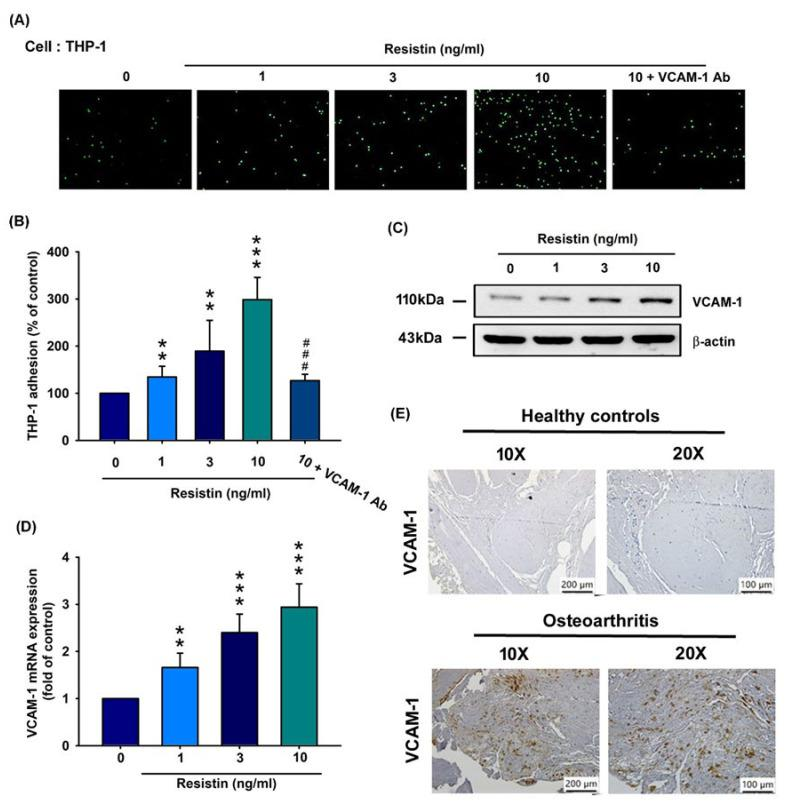 Resistin stimulates VCAM-1 expression and monocyte adhesion to osteoarthritis synovial fibroblasts (OASFs). ( A – D ) OASFs were incubated with resistin (0, 1, 3, and 10 ng/mL) only or resistin at 10 ng/mL + VCAM-1 antibody for 24 h. THP-1 cells were subsequently added to OASFs for 1 h. The adherence of THP-1 cells to cultured OASFs was photographed under fluorescence microscopy (n = 4) ( A ) and quantified ( B ). VCAM-1 expression according to varying concentrations of resistin (0, 1, 3, or 10 ng/mL) was quantified by Western blotting (n = 3) ( C ) and RT-qPCR analysis (n = 4) ( D ). ( E ) IHC staining of VCAM-1 for normal (n = 10) and OA synovium (n = 10). ** p
