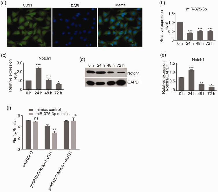 MiR-375-3p levels were negatively correlated with the expression of Notch1 following hypoxic exposure for 0, 24, 48, or 72 hours in primary PMECs. (a) Immunohistochemical staining of CD31 expression, a marker of PMECs. (b, c) Quantitative PCR of the miR-375-3p and Notch1 expression levels in PMECs following hypoxic treatment. (d) Immunoblotting of the Notch 1 protein expression in PMECs following hypoxic treatment. (e) The relative expression of Notch1 in (d) was quantified and normalized to that of GAPDH. (e) Dual-luciferase reporter assay illustrating the effect of miR-375-3p on the expression of Notch1. Data represent the mean ± SD, n = 6. ** P