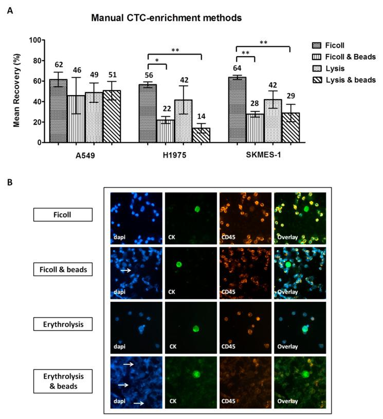 Comparison of manual circulating tumor cell (CTC)-enrichment approaches in spiking experiments: ( A ) Recovery rates of pre-labeled A549, H1975, and SKMES-1 cells following enrichment with each method. Values represent mean recoveries; error bars represent standard error of mean (SEM). * , ** One-way ANOVA test; statistical significance at the p