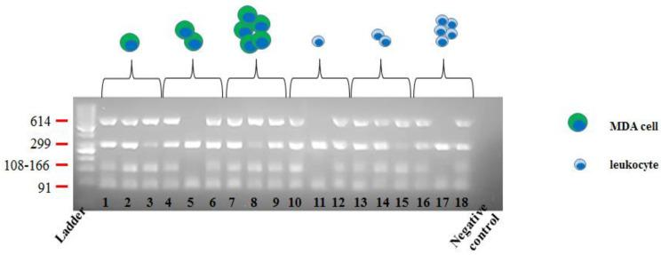 DNA integrity testing in sorted MDA/leukocytes cells. Multiplex PCR was performed and four PCR products of different lengths from four chromosomal regions were amplified. The number of bands obtained by each PCR product was visualized on a 3% agarose gel through ultraviolet light. Each lane represents a single/cellular pool.